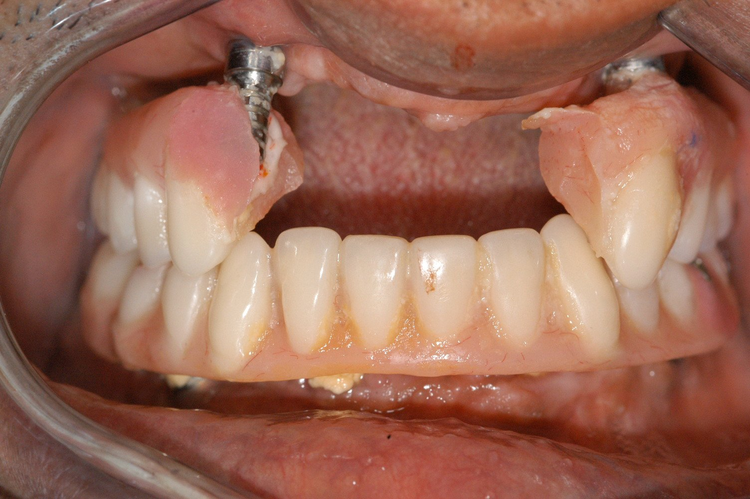 Implant Problem Was Mainly Poor Quality Lab Work