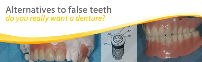 Dental Implants as alternative to false teeth