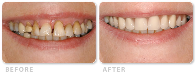 all on four happy implant patient 1