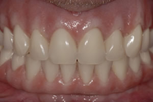 dental implant retain bridge – final smile