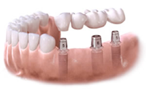 dental implant retain bridge –  illustration