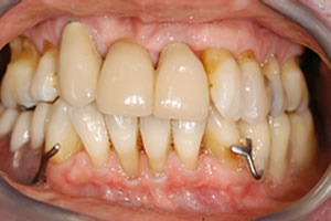 dental implants look better than false teeth – final smile bridge with clasps