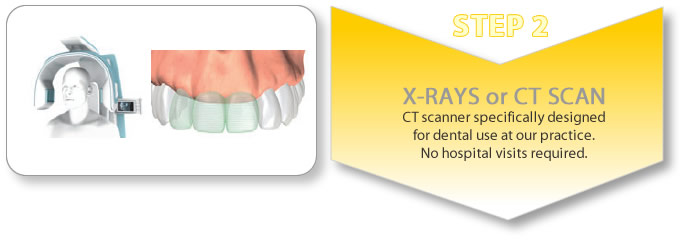 implant retained partial denture procedure - ct scan
