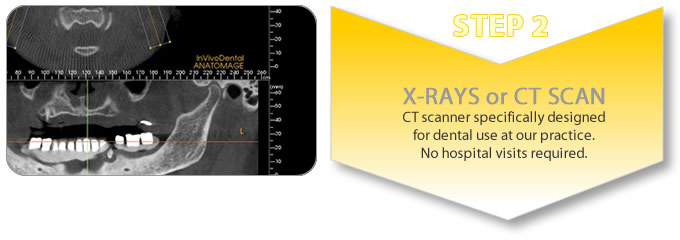 procedure for tooth implant_ct scan and x-rays