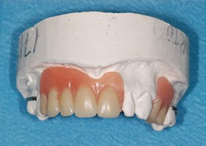 new denture not repaired