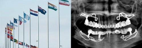 cheap dental implants abroad are offered in Spain, India Budapest, Hungary Malta Prague Poland