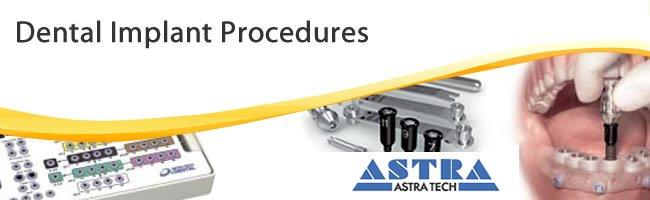 dental implant procedures replacing missing teeth