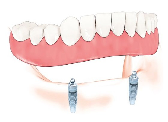 Dental implant supported dentures nobel