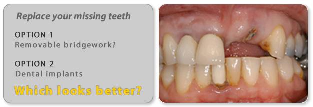 False teeth in the form of a bridge