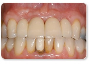 False teeth in the form of a implant retained bridge
