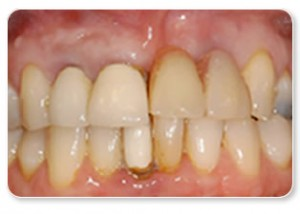 False teeth in the form of a removable bridge