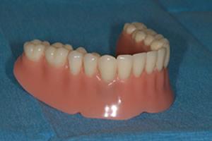 Full dentures secured by gums