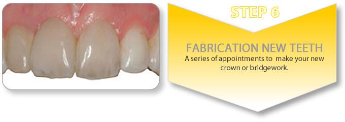 implant retained partial denture procedure - final bridgework