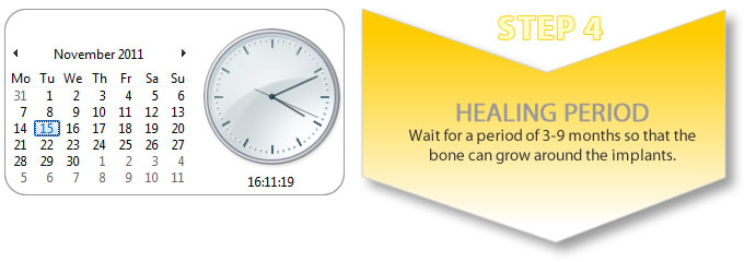 procedure for tooth implant_healing time