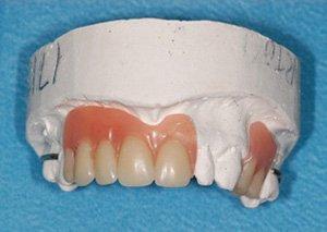 new denture not repaired