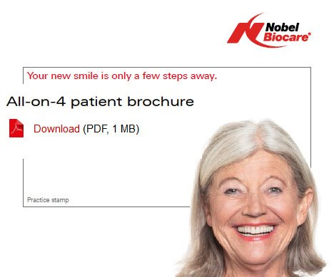 all on 4 free dental implant download