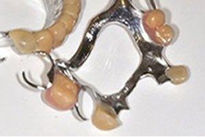 dental-implants-look-better-than-false-teeth-–-bridge-with-clasps