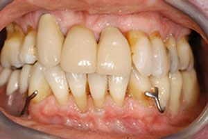 dental-implants-look-better-than-false-teeth-–-final-smile-bridge-with-clasps