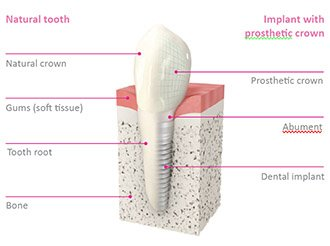 How do dental implants work?