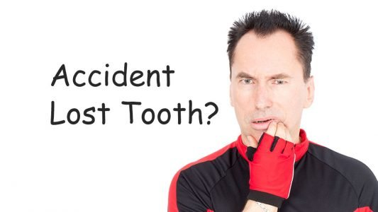 man-lost-tooth-in-accident-feature