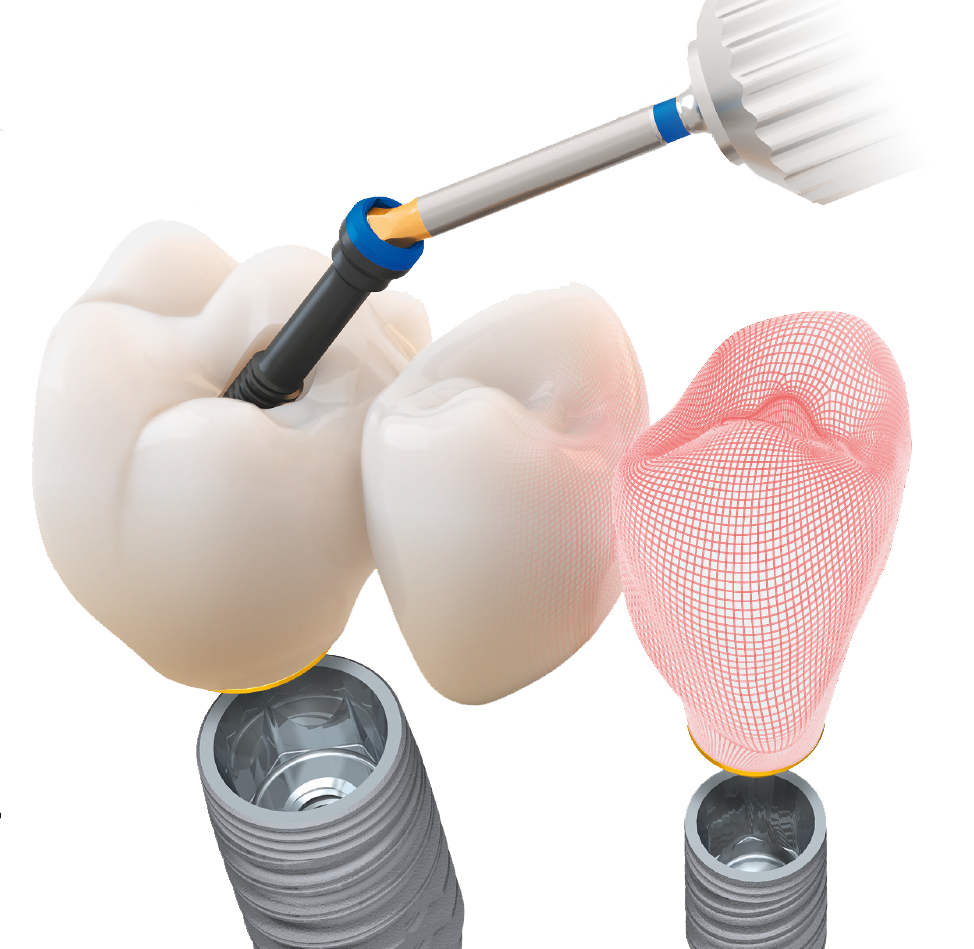 Dental-Bridge-Vs-Implant