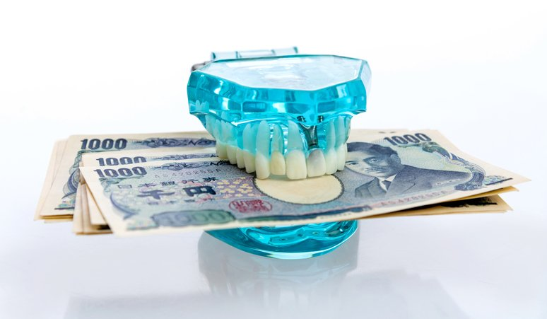 Alternatives to false teeth