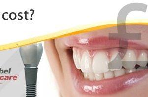 Dental Implants prices
