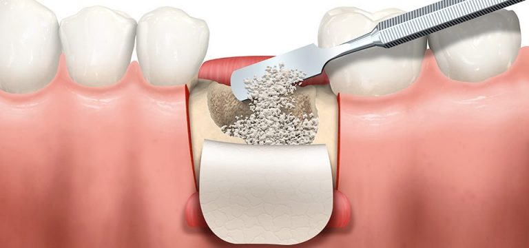 bone graft for dental implant - nobel biocare