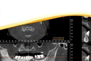 bone-grafting-sinus-procedures