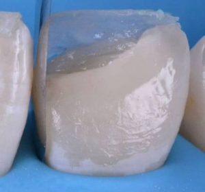composite front tooth repairs