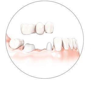 dental-bridge-supported-by-teeth