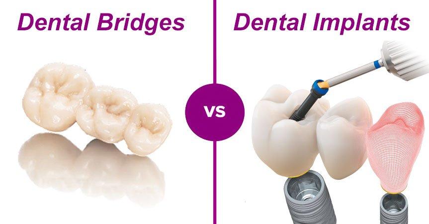 dental-bridges-vs-dental-implants