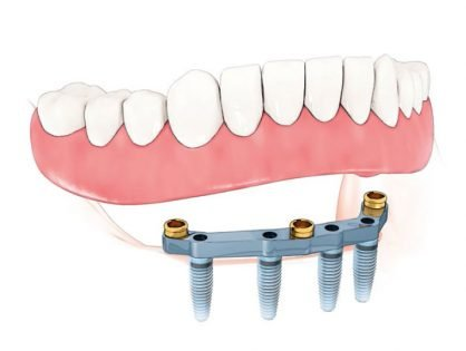 fixed-removable-denture-supported by-implant-bar