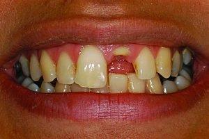 front tooth broken implant