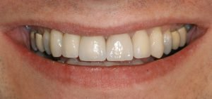 front tooth crowns smile after