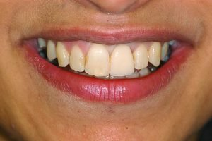 front tooth dental implant after