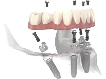all on four dental implants nobel biocare