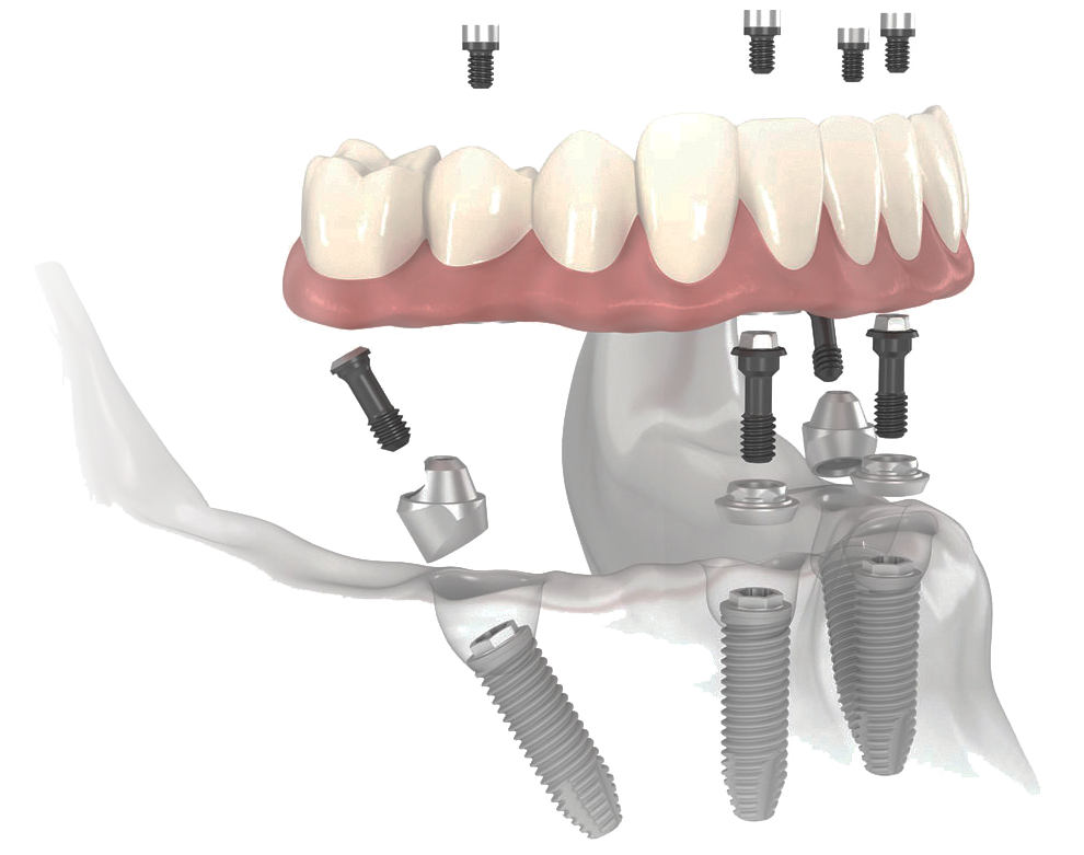 full-mouth-dental-implants-all-on-4