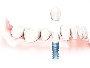 one-tooth-dental-implant-cost-per-tooth