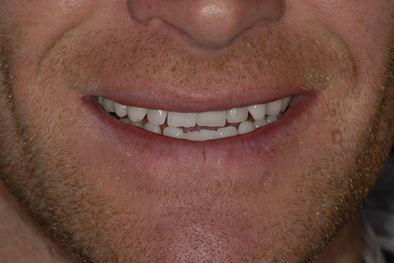 one tooth implant smile after
