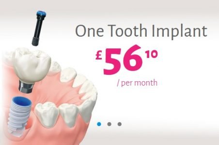 one tooth implant